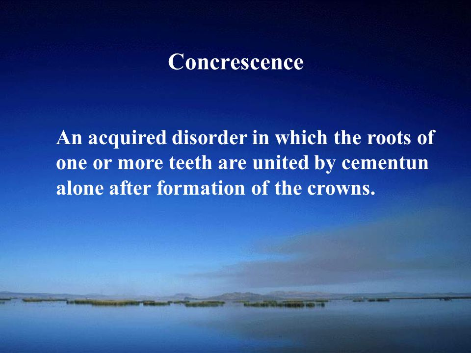 Concrescence An acquired disorder in which the roots of
