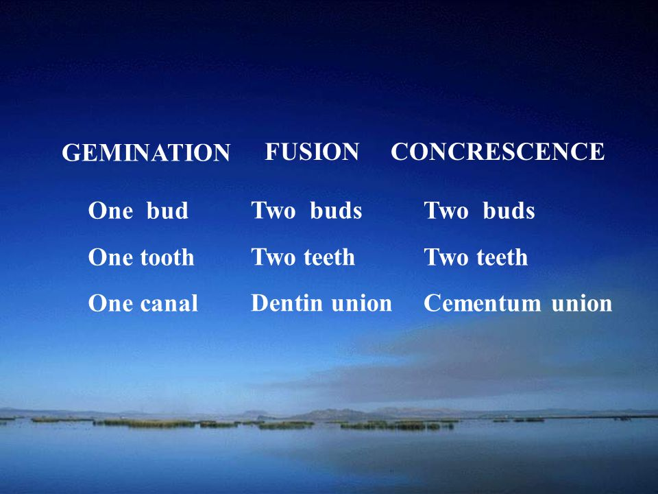 GEMINATION FUSION. CONCRESCENCE. One bud. One tooth. One canal. Two buds. Two teeth. Dentin union.