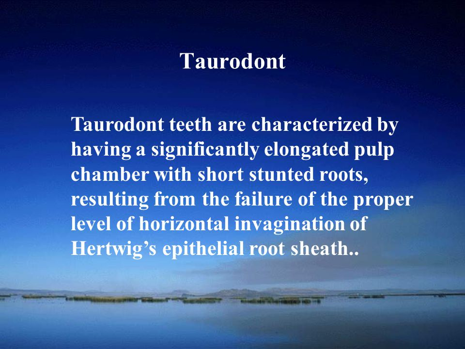 Taurodont Taurodont teeth are characterized by