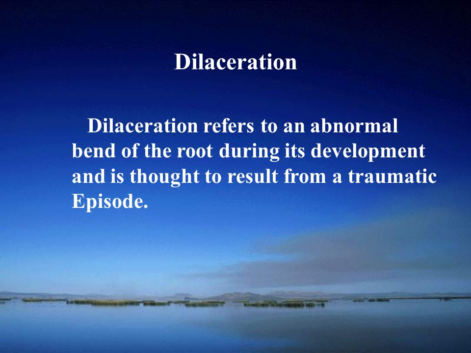 Dilaceration Dilaceration refers to an abnormal