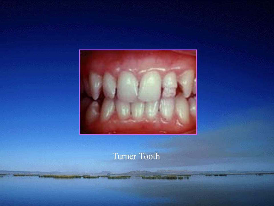 Turner Tooth