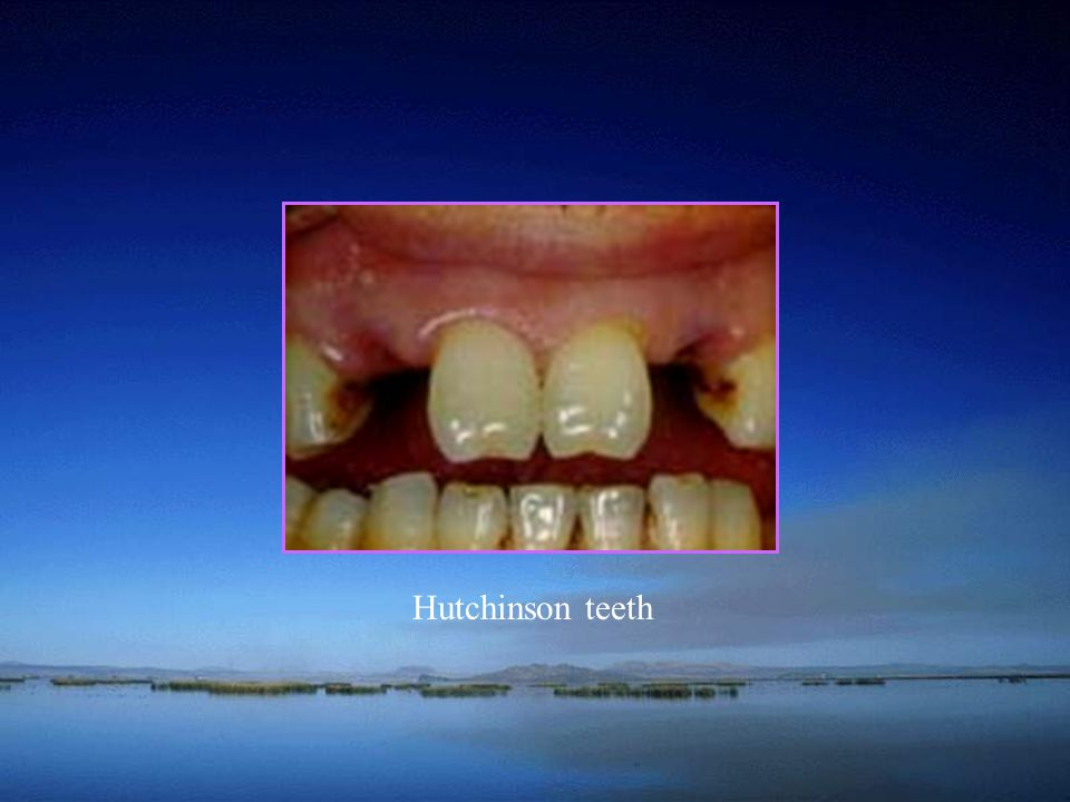 Hutchinson teeth