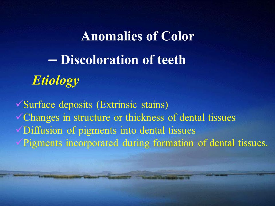 — Discoloration of teeth Etiology