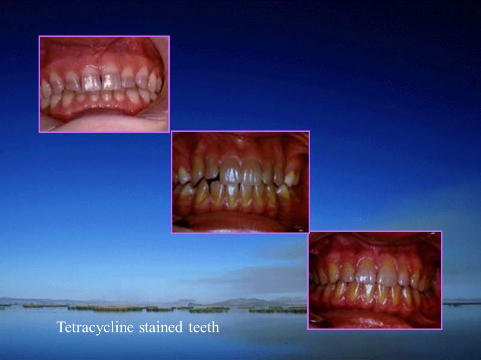 Tetracycline stained teeth