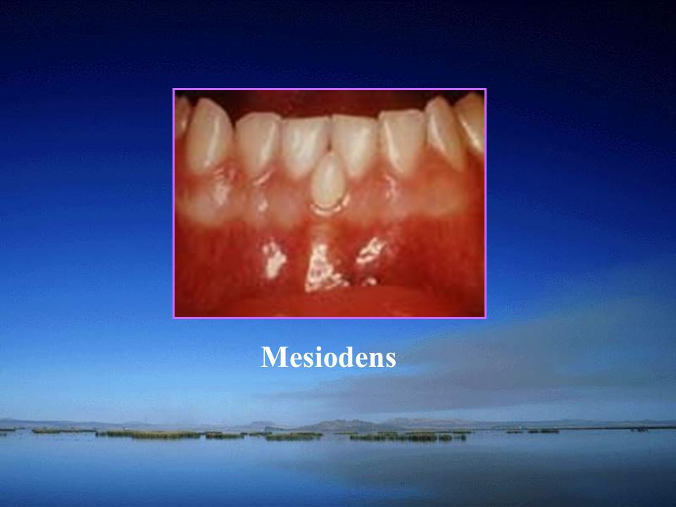 Mesiodens Anadontia: a complete absence of one or both dentition.