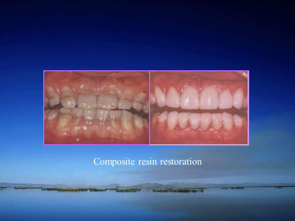 Composite resin restoration