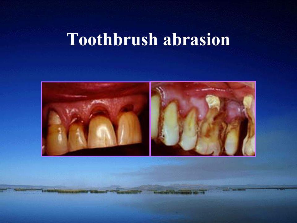 Toothbrush abrasion