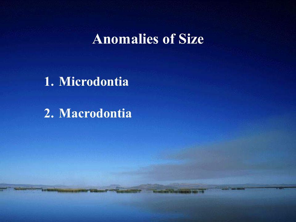 Anomalies of Size Microdontia Macrodontia
