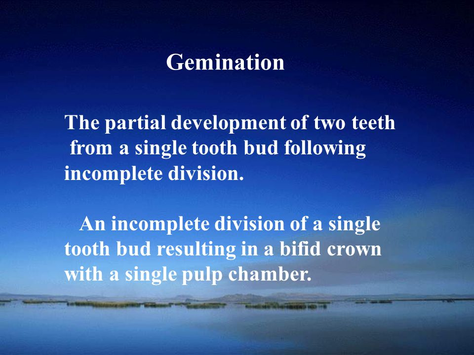 Gemination The partial development of two teeth