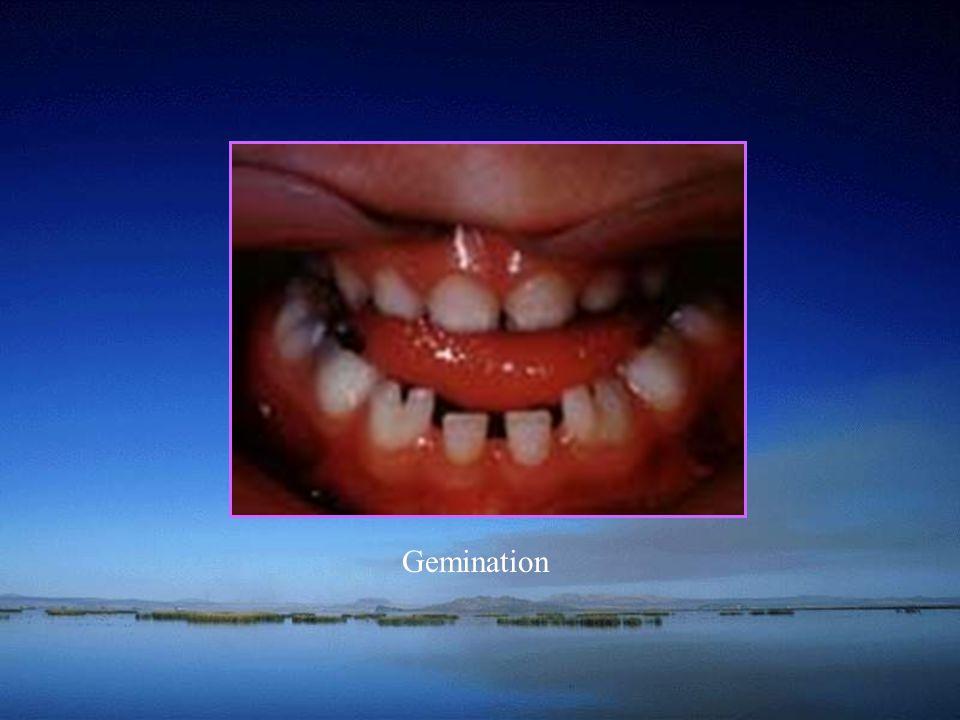 Gemination