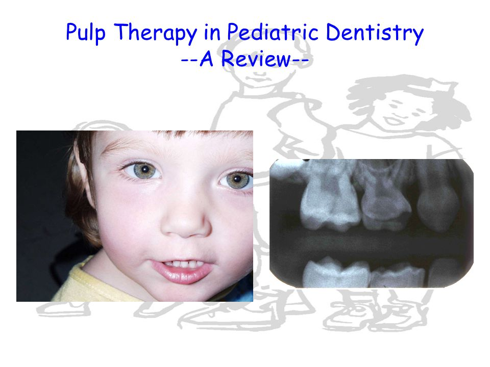 Pulp Therapy in Pediatric Dentistry --A Review--