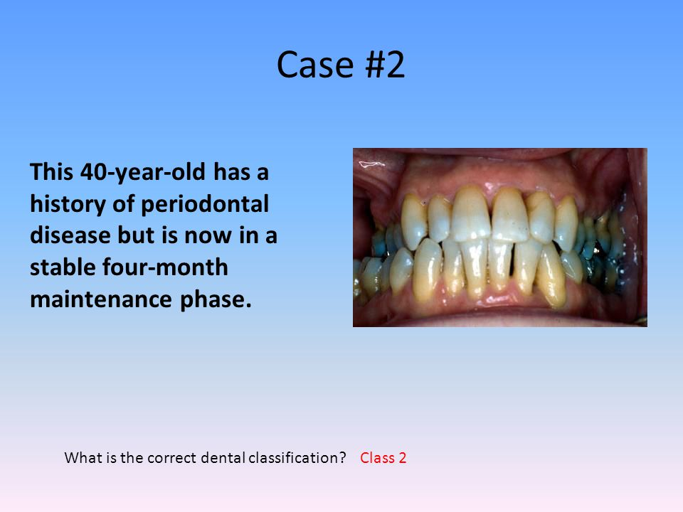 Case #2 This 40-year-old has a history of periodontal disease but is now in a stable four-month maintenance phase.