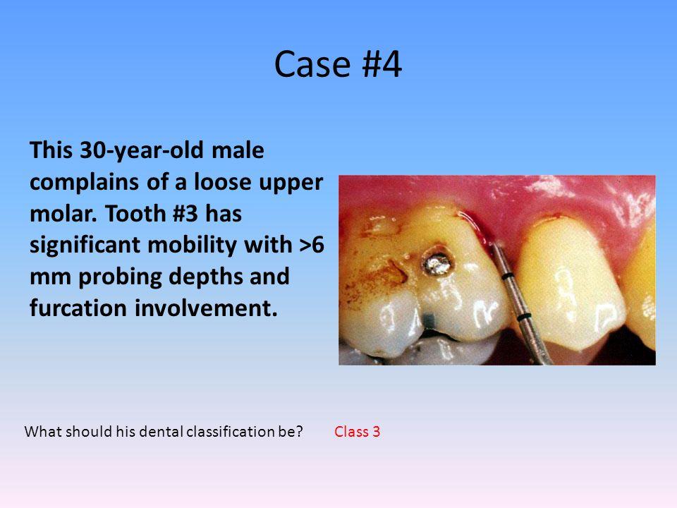 Case #4