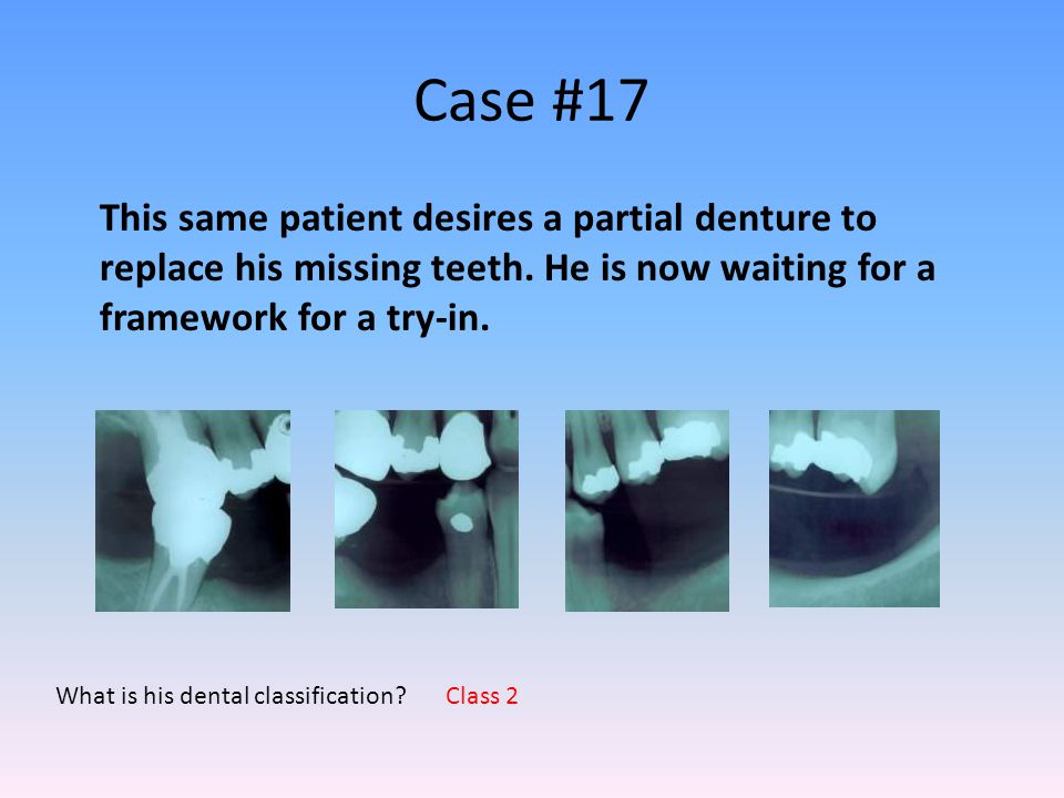 Case #17 This same patient desires a partial denture to replace his missing teeth. He is now waiting for a framework for a try-in.