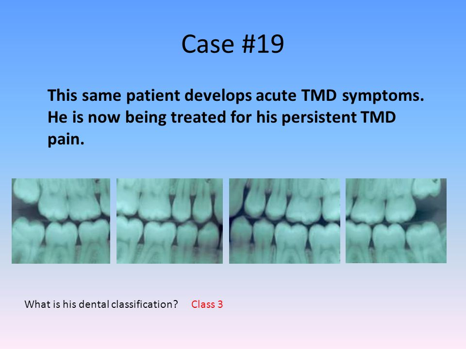 Case #19 This same patient develops acute TMD symptoms. He is now being treated for his persistent TMD pain.