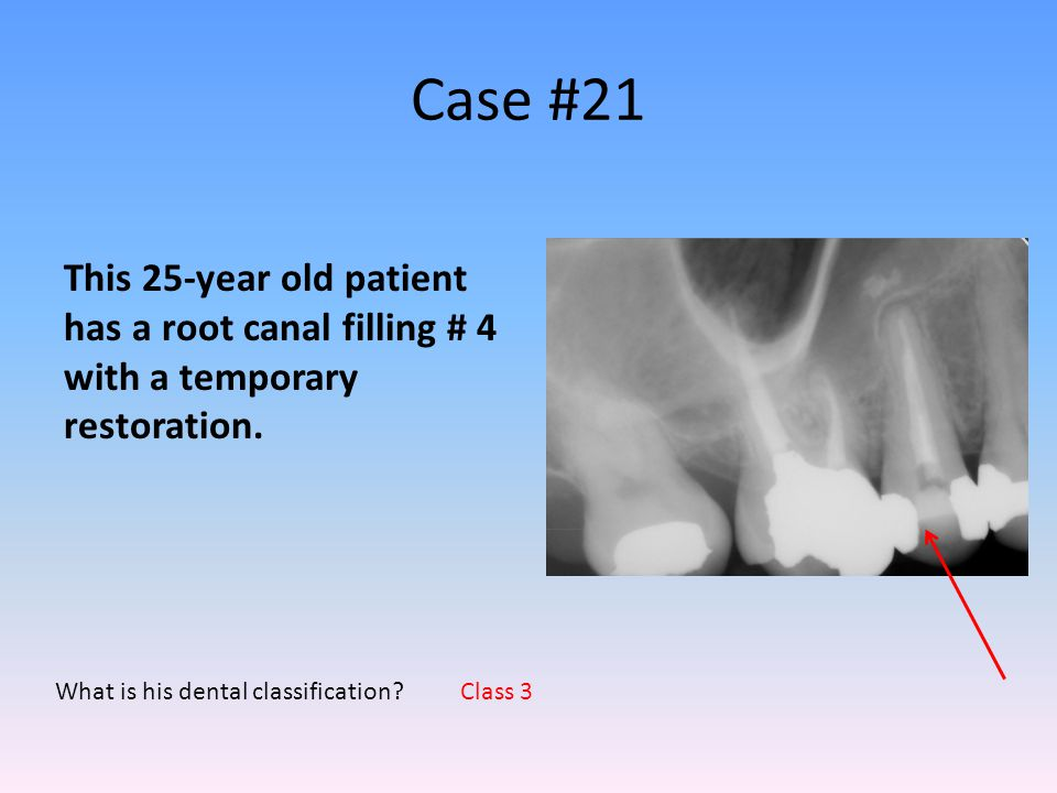 Case #21 This 25-year old patient has a root canal filling # 4 with a temporary restoration. What is his dental classification
