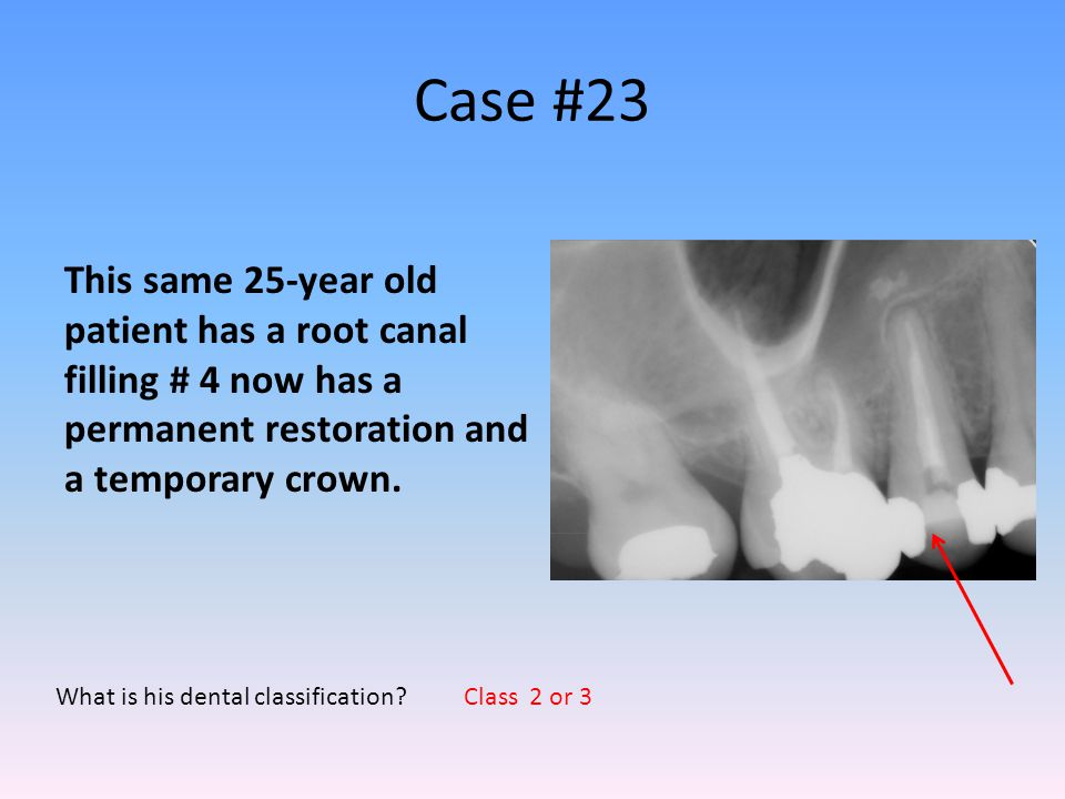 Case #23 This same 25-year old patient has a root canal filling # 4 now has a permanent restoration and a temporary crown.