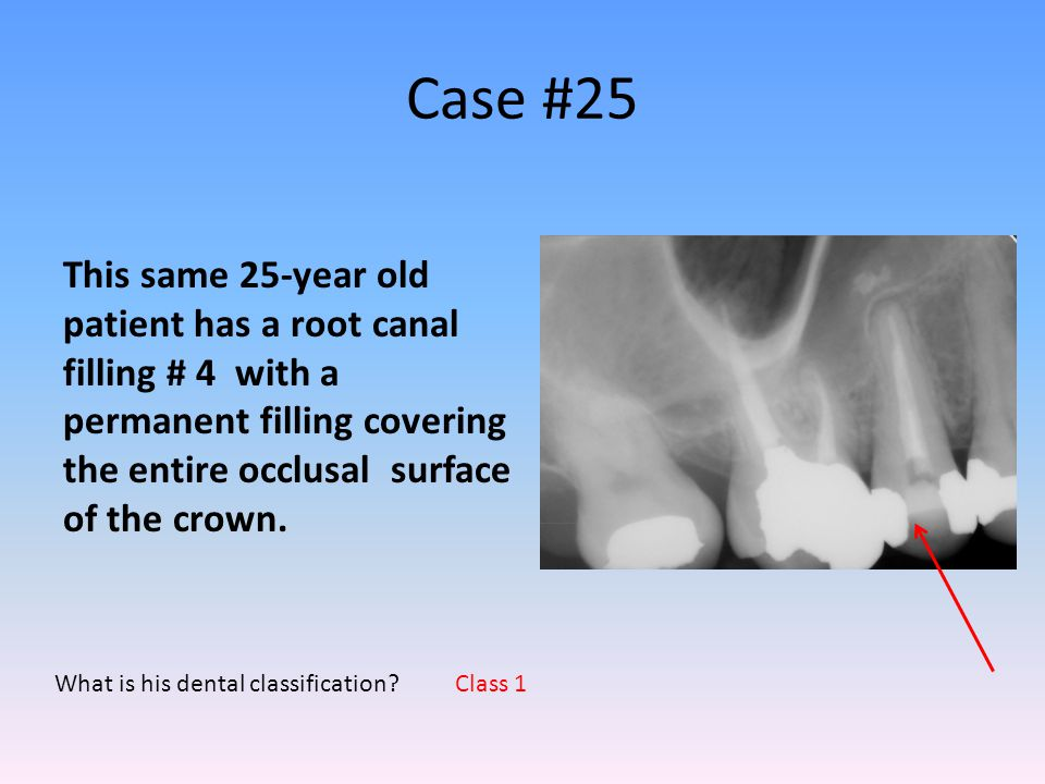 Case #25 This same 25-year old patient has a root canal filling # 4 with a permanent filling covering the entire occlusal surface of the crown.