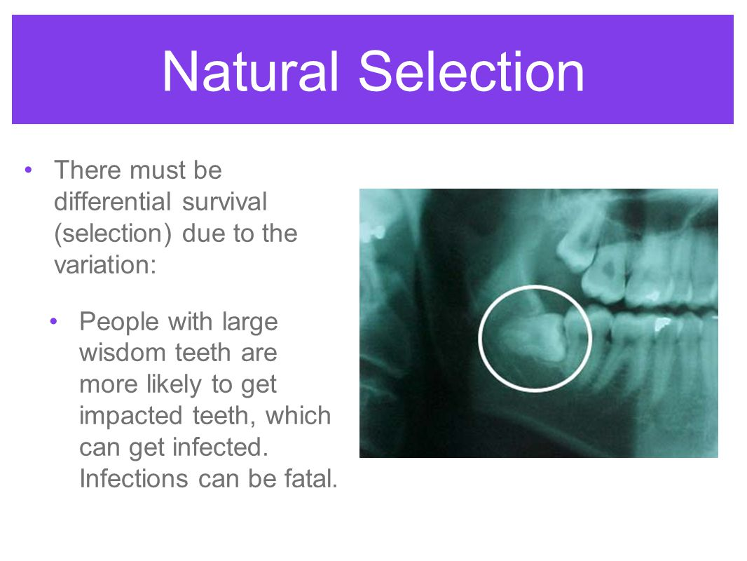 Natural Selection There must be differential survival (selection) due to the variation: