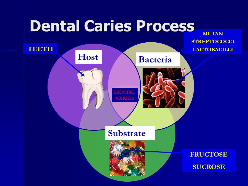 Dental Caries Process Host Bacteria Substrate TEETH FRUCTOSE SUCROSE