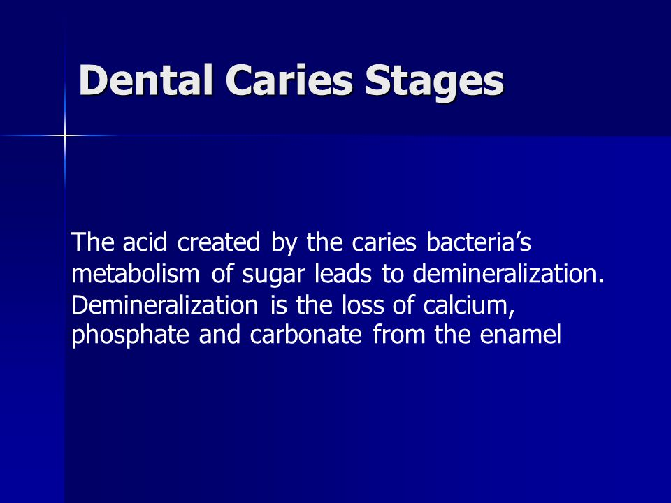 Dental Caries Stages