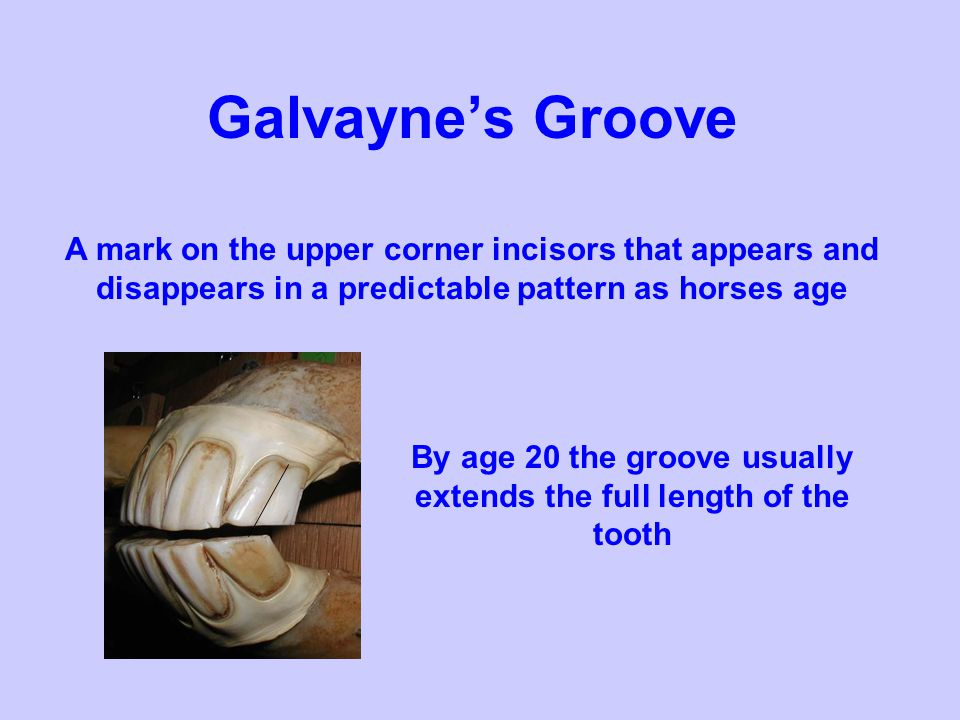 By age 20 the groove usually extends the full length of the tooth