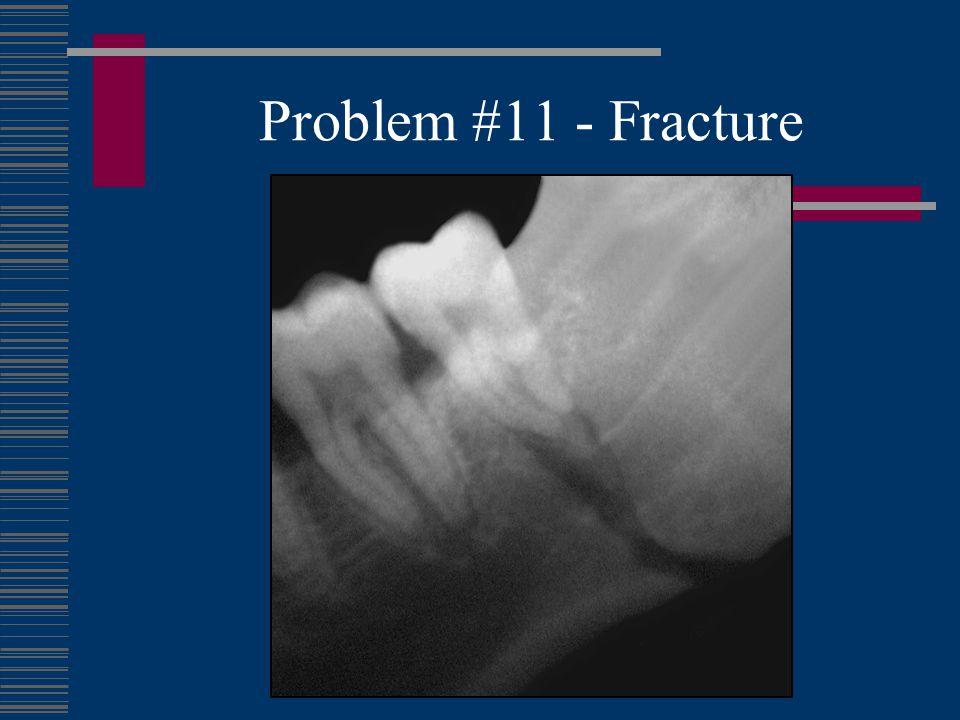 Problem #11 - Fracture
