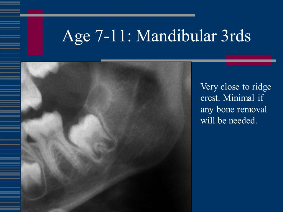 Age 7-11: Mandibular 3rds Very close to ridge crest. Minimal if any bone removal will be needed.