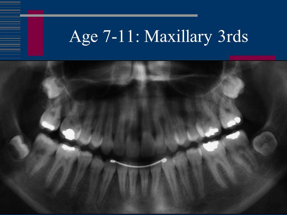 Age 7-11: Maxillary 3rds
