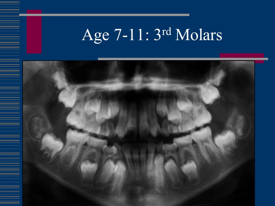 Age 7-11: 3rd Molars