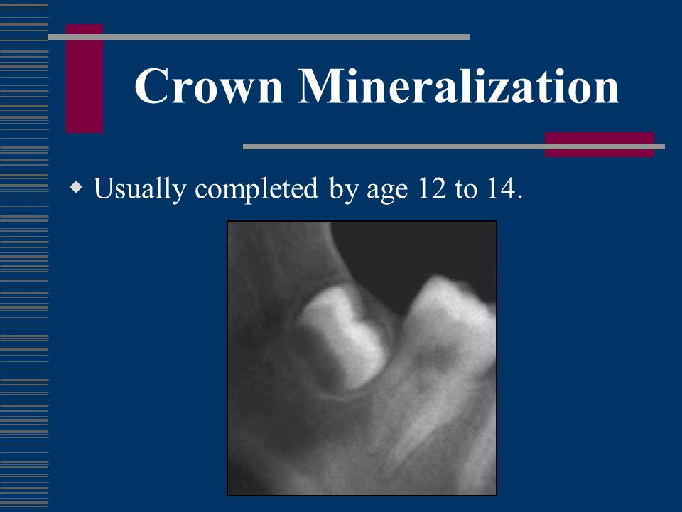 Crown Mineralization Usually completed by age 12 to 14.