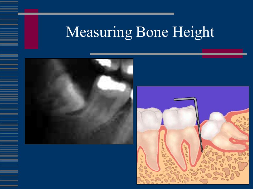 Measuring Bone Height