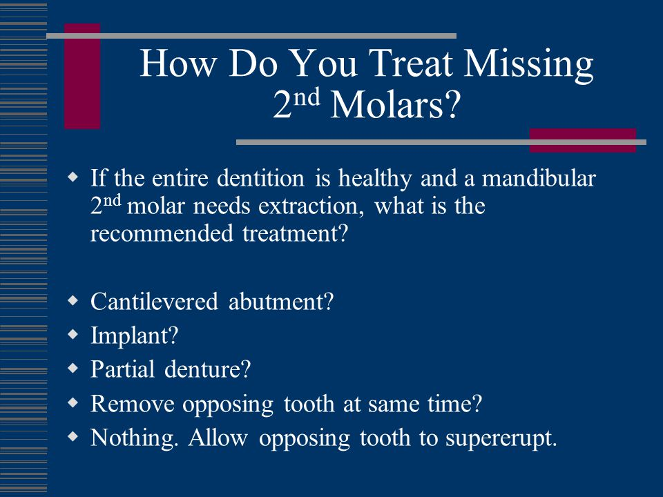 How Do You Treat Missing 2nd Molars