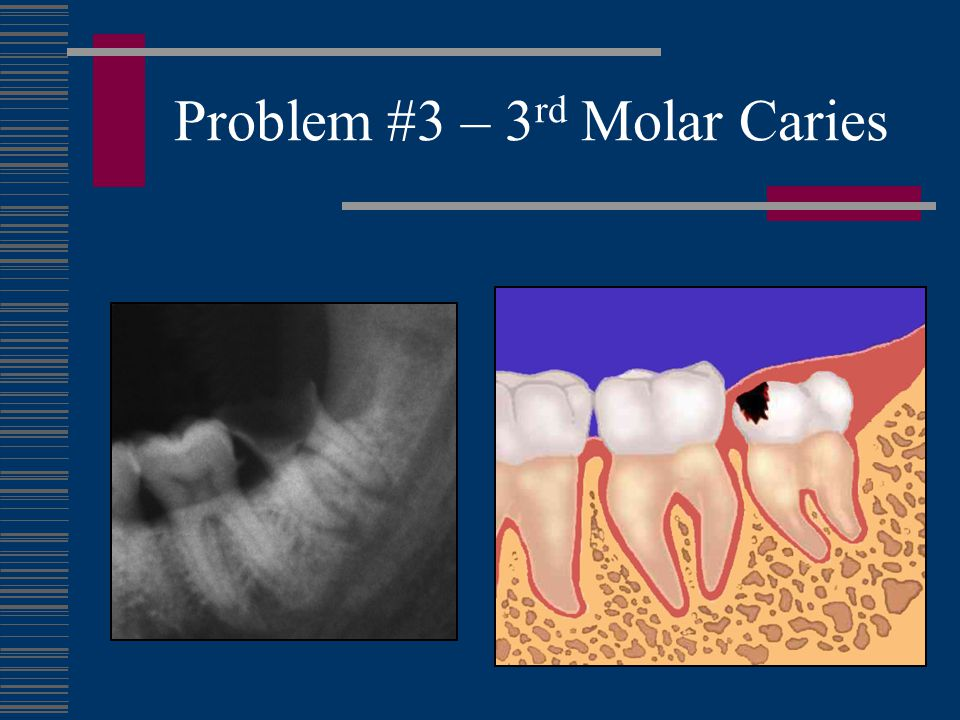 Problem #3 – 3rd Molar Caries