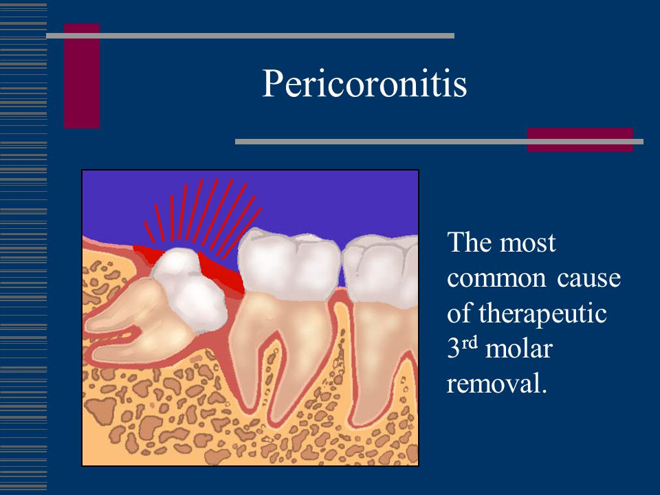 Pericoronitis The most common cause of therapeutic 3rd molar removal.
