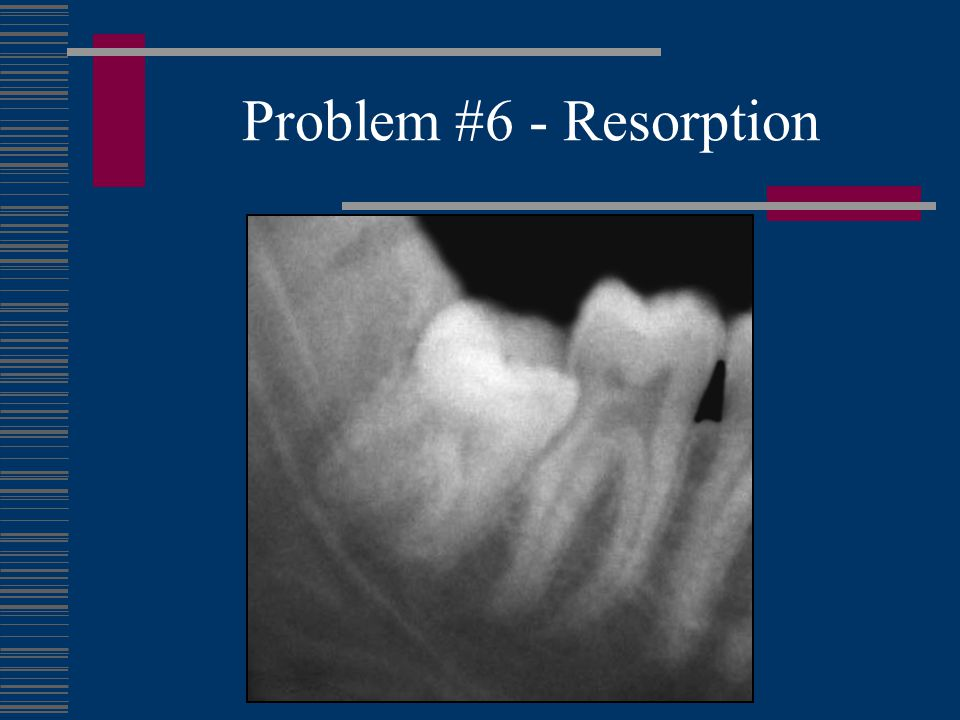 Problem #6 - Resorption