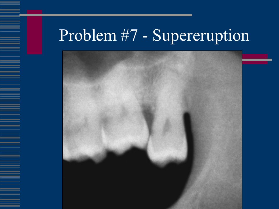 Problem #7 - Supereruption