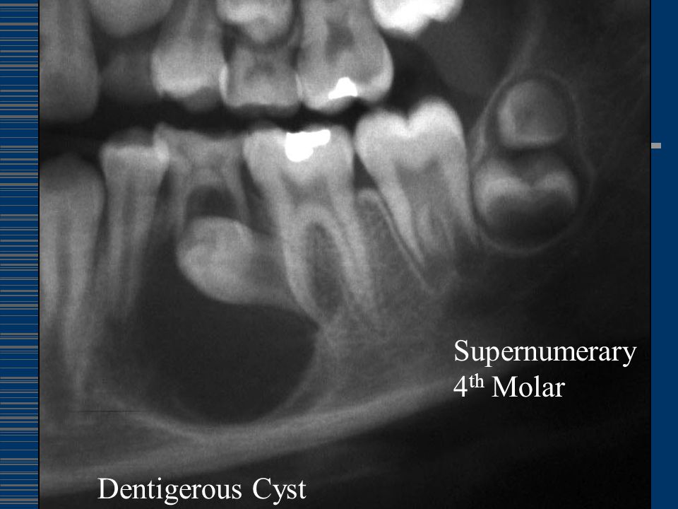 Supernumerary 4th Molar Dentigerous Cyst