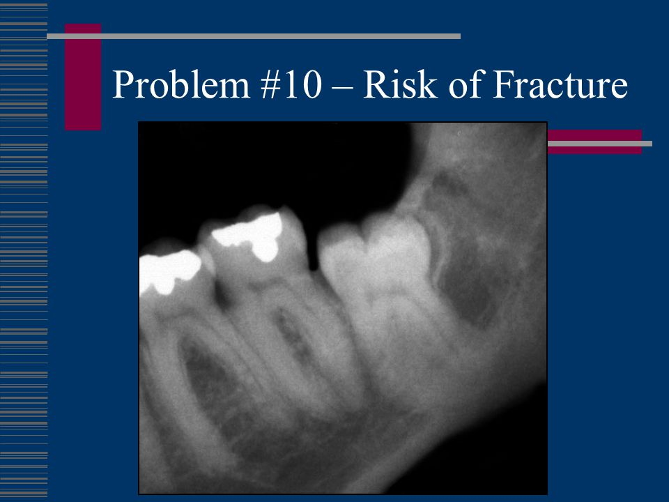 Problem #10 – Risk of Fracture