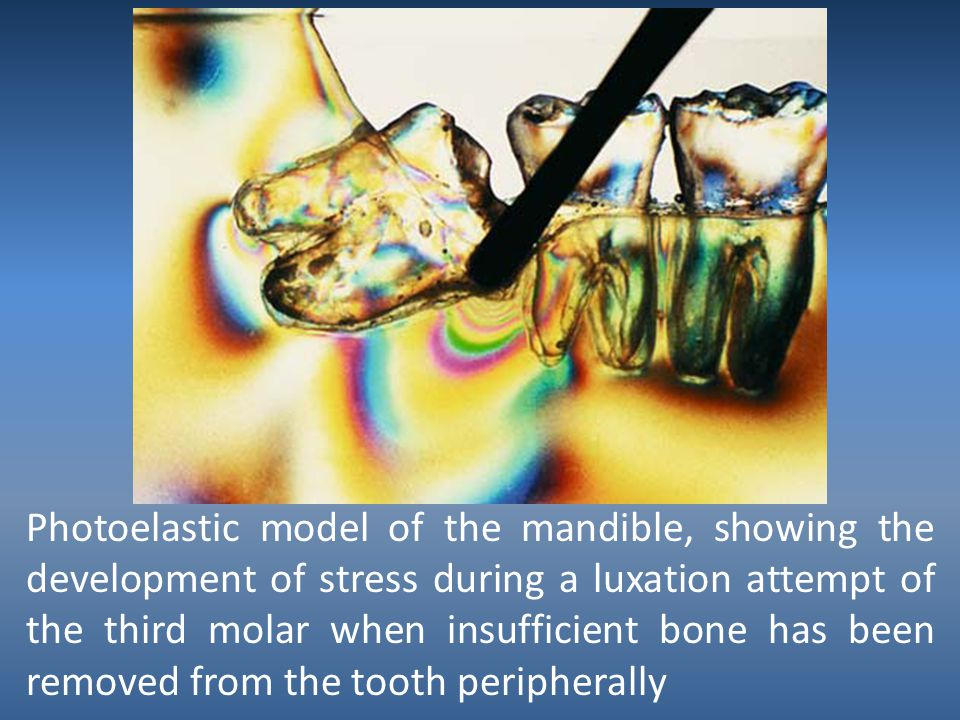 Photoelastic model of the mandible, showing the development of stress during a luxation attempt of the third molar when insufficient bone has been removed from the tooth peripherally