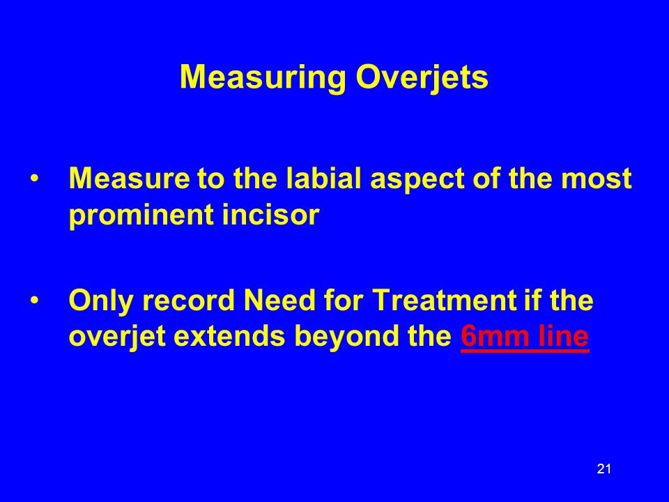 Measuring Overjets Measure to the labial aspect of the most prominent incisor.