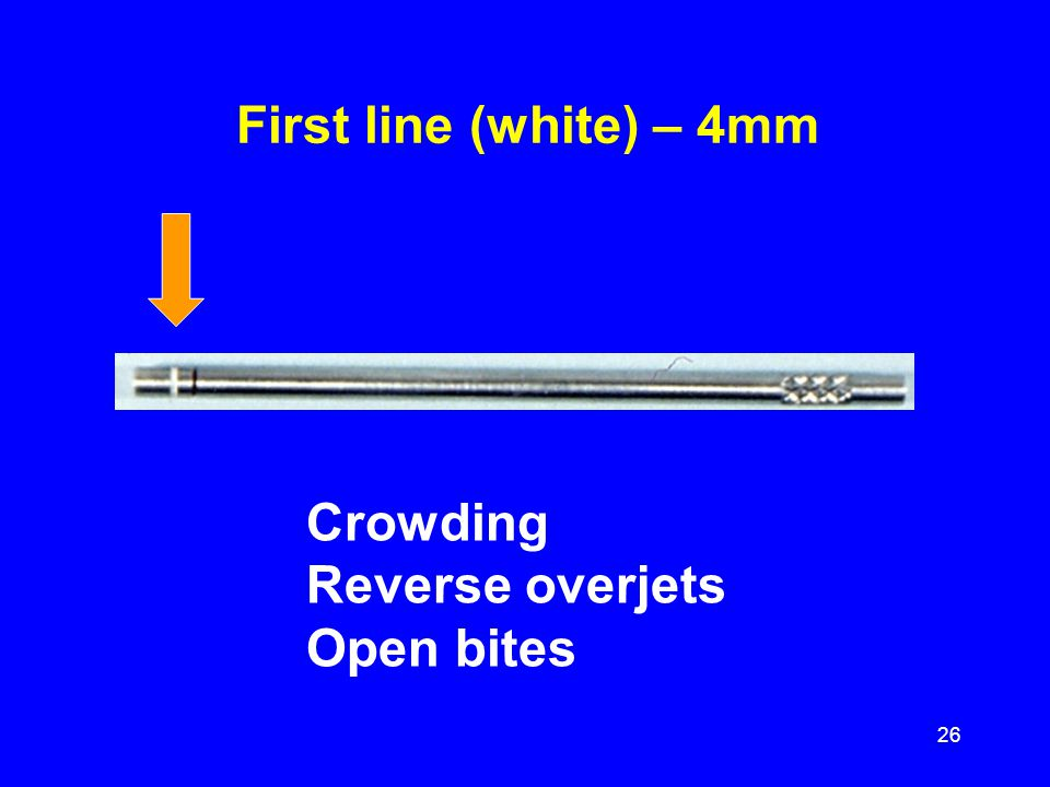 First line (white) – 4mm Crowding Reverse overjets Open bites