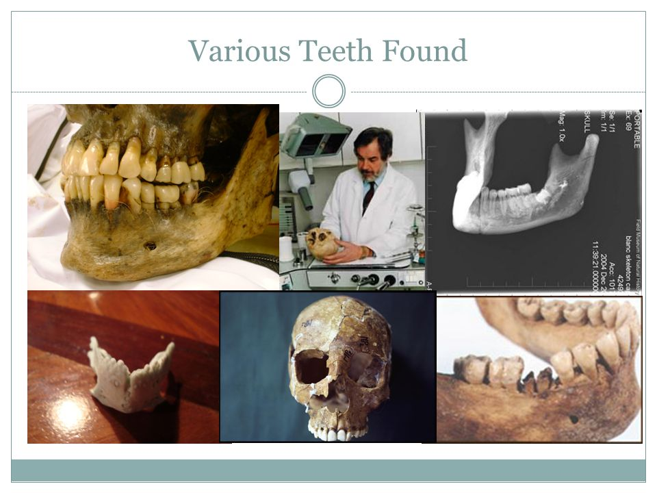 Various Teeth Found