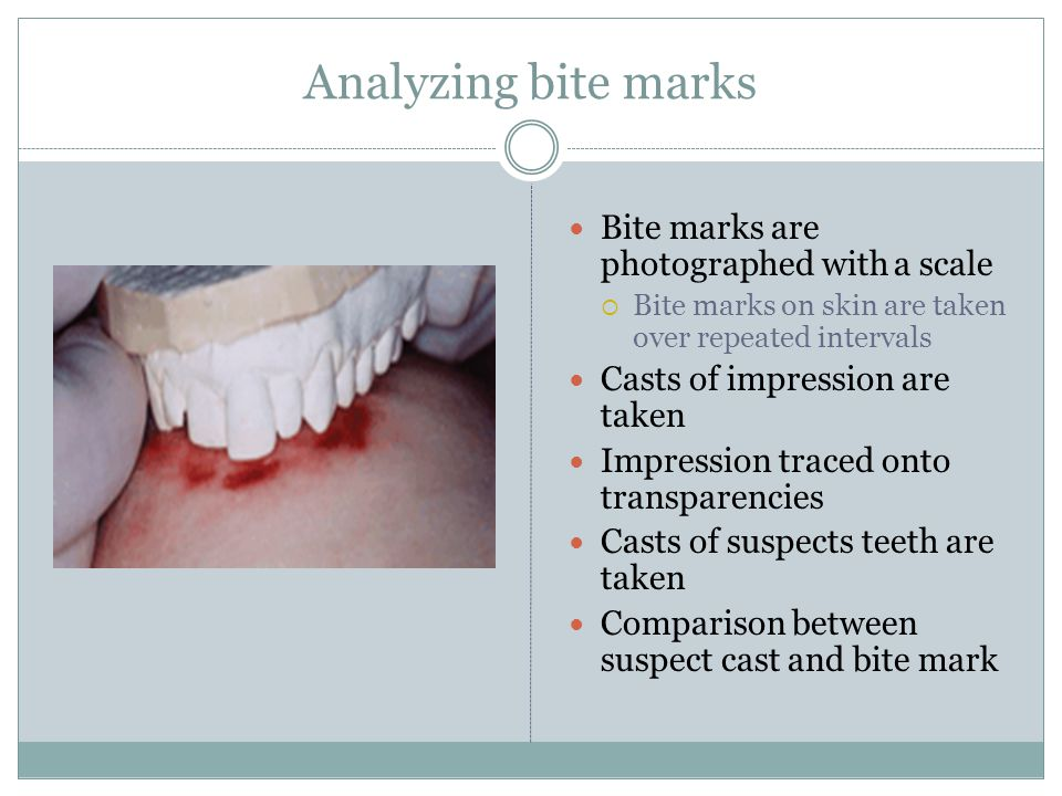 Analyzing bite marks Bite marks are photographed with a scale
