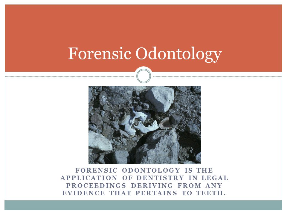 Forensic Odontology Forensic Odontology is the application of dentistry in legal proceedings deriving from ANY evidence that pertains to teeth.