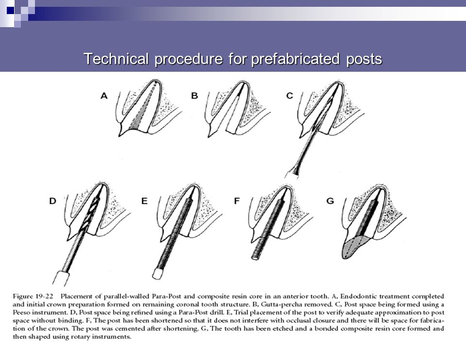 Technical procedure for prefabricated posts