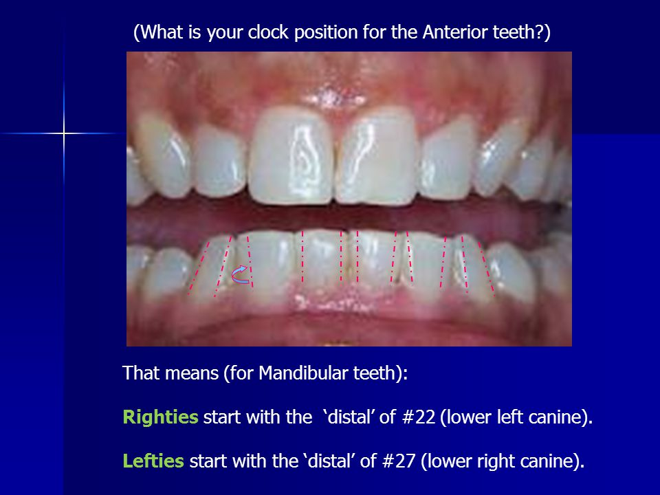 (What is your clock position for the Anterior teeth )