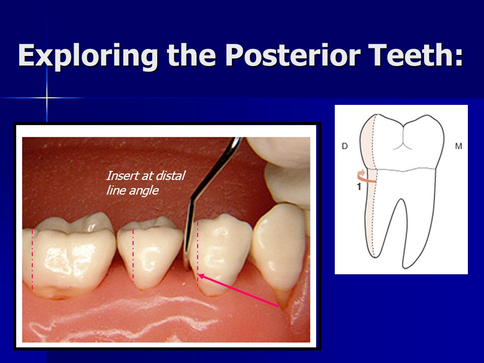 Exploring the Posterior Teeth: