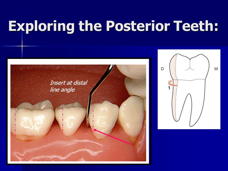 Exploring the Posterior Teeth:
