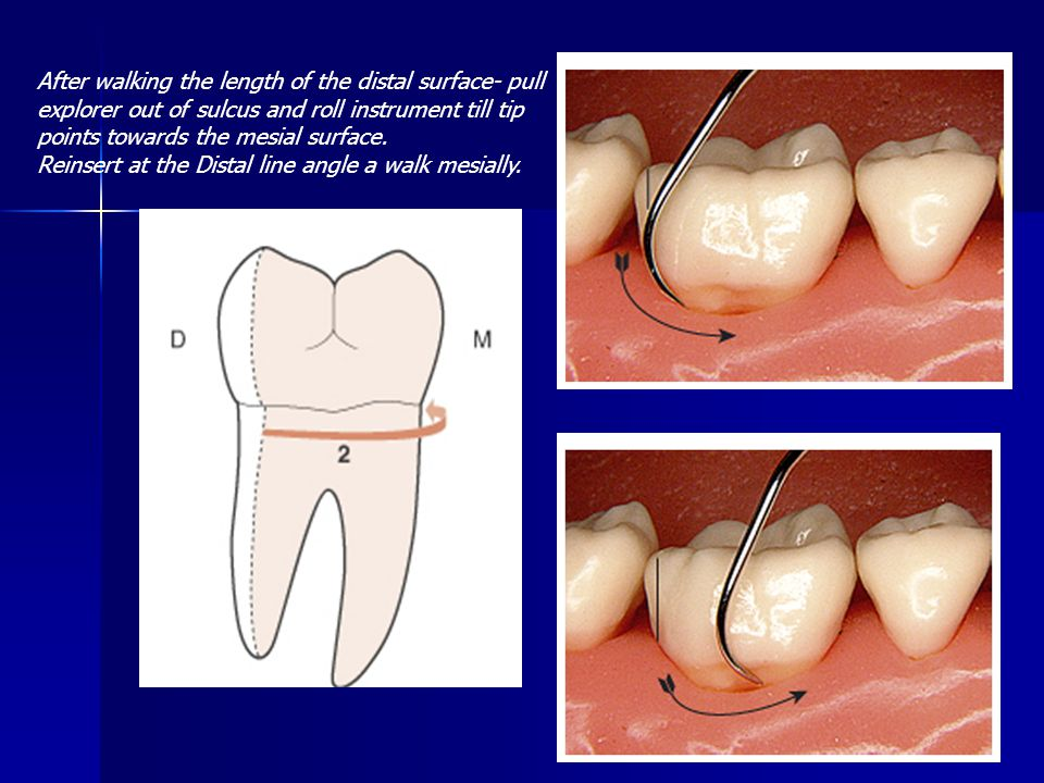 After walking the length of the distal surface- pull explorer out of sulcus and roll instrument till tip points towards the mesial surface.